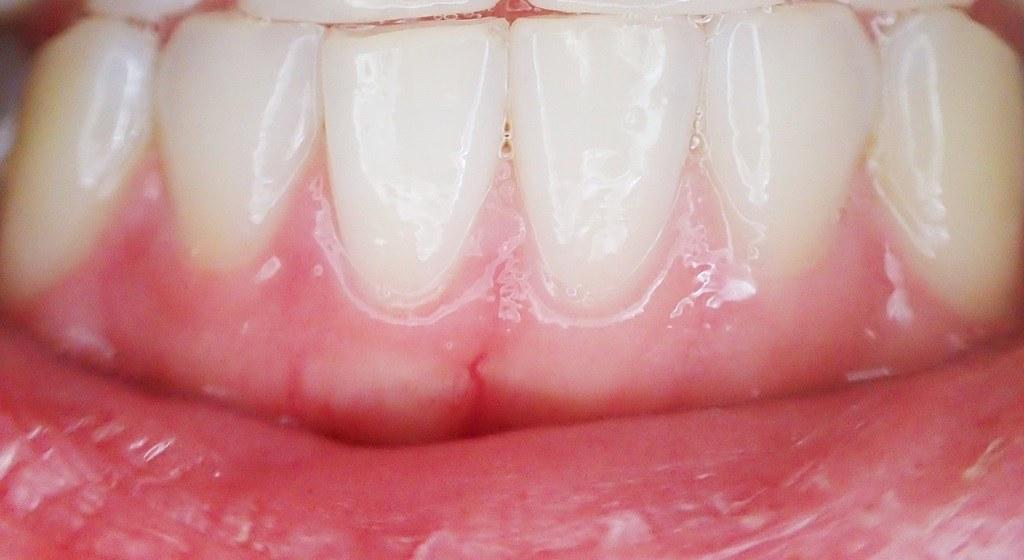 Mejorar la periodontitis con cepillo eléctrico